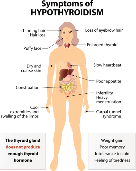 How to Avoid Foods That Hurt Your Gut How to Avoid Foods That Hurt Your Gut new picture